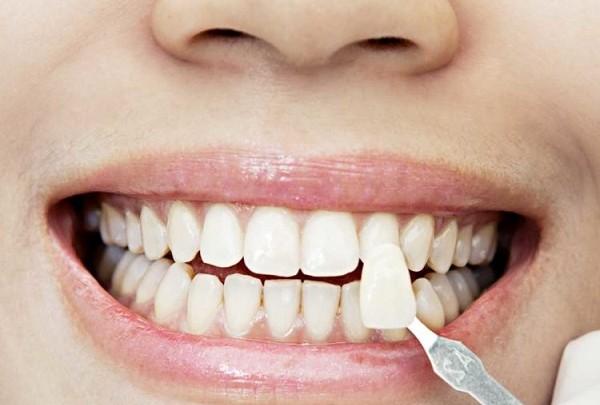 teeth-veneer